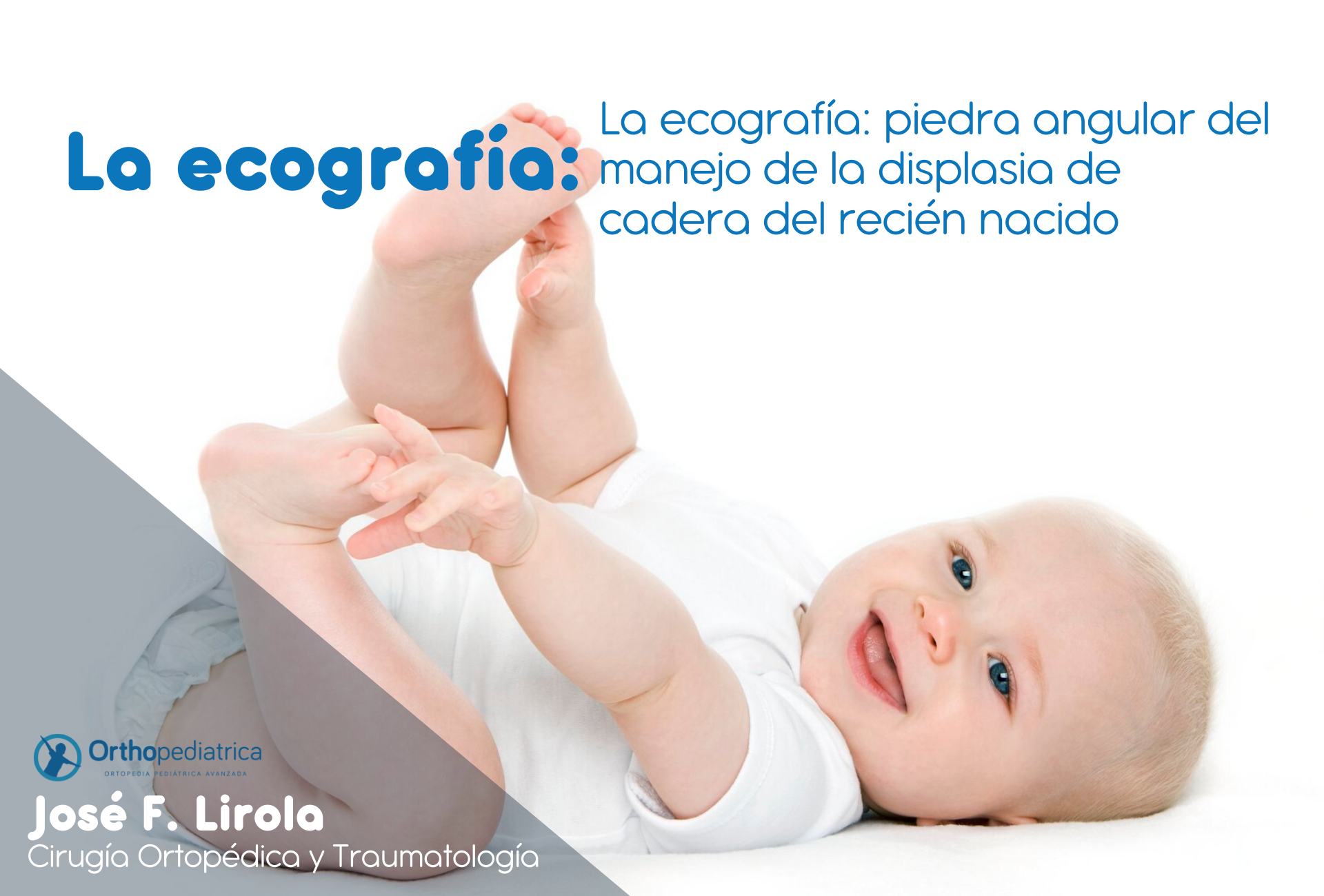 Displasia_cadera_orthopediatrica_sevilla