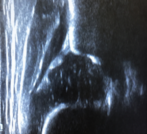 ecografia_de-cadera_metodo_graf_sevilla_ihp_orthopediatrica
